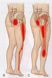 レントゲンで異常がないのにお尻から脚に痛みが出る??