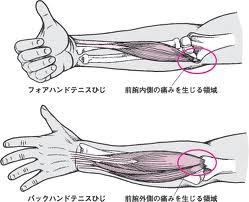 ものを掴む時の肘の痛み