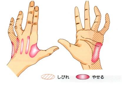 小指、薬指がしびれる???