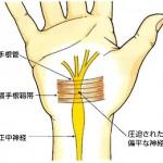 手根管 (2)
