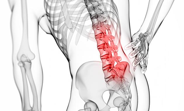 この季節要注意。筋肉が原因の腰痛。